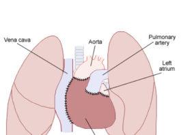 Les transplantations cardiaques